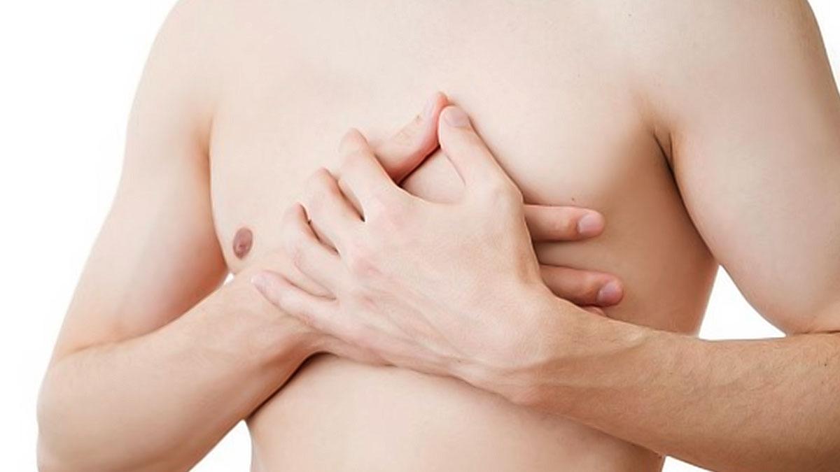 γυναικομαστία kallisti medical πλαστικός χειρουργός κεραστάρης δημήτρης αθήνα