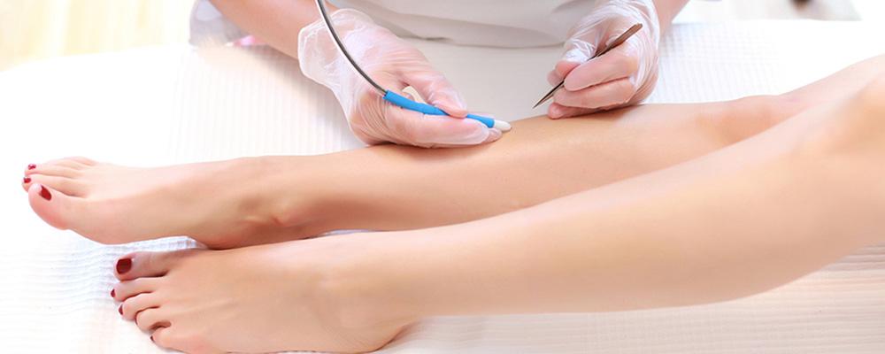 Ηλεκτρική Ριζική Αποτρίχωση - Kallisti Medical Πλαστικός Χειρουργός ... 6acd3fee09f