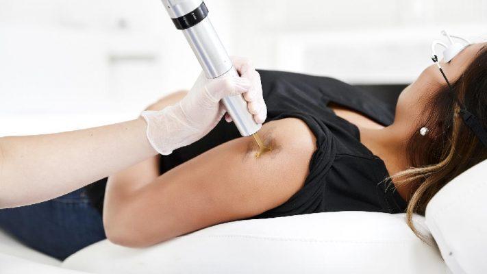 αφαίρεση tattoo evo q plus kallisti medical πλαστικός χειρουργός κεραστάρης δημήτρης αθήνα