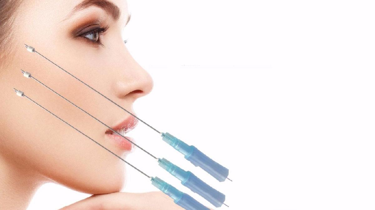νήματα PLLA kallisti medical πλαστικός χειρουργός κεραστάρης δημήτρης αθήνα