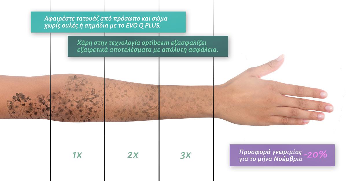 Αφαίρεση τατουαζ